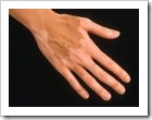 vitiligo_hand