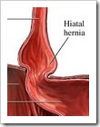 hiatalhernia