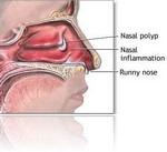 nasal_polyps